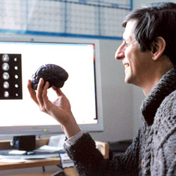 Brain Tumour Analysis Project