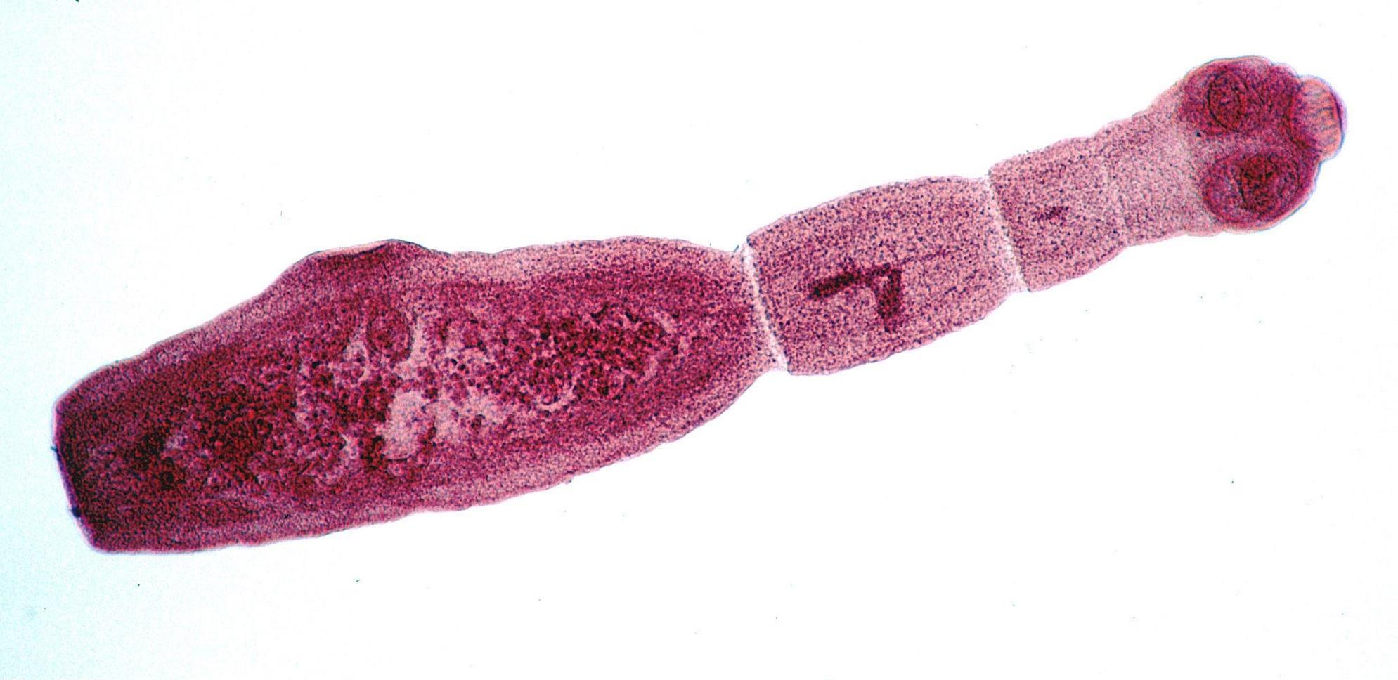 210617-tapeworm-echinococcus-multilocularis-adult-main.jpg