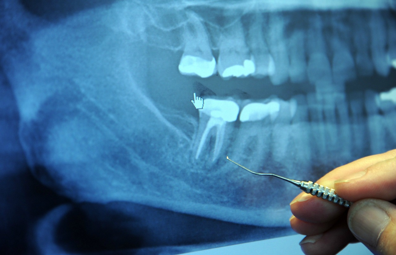 A dentist indicates a finding on a dental X-ray. (Photo: Wonderlane via Flickr, CC BY 2.0)