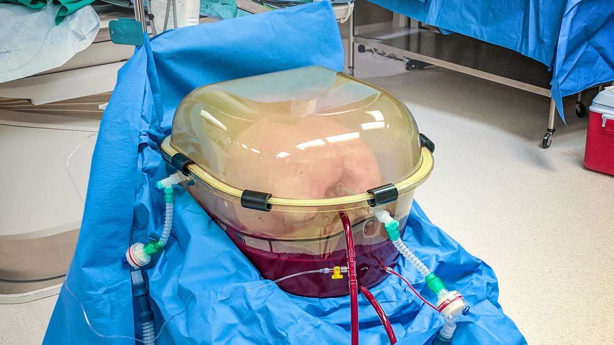 Freed and Nagendran's ex-vivo organ perfusion device. Photo credit Darren Freed
