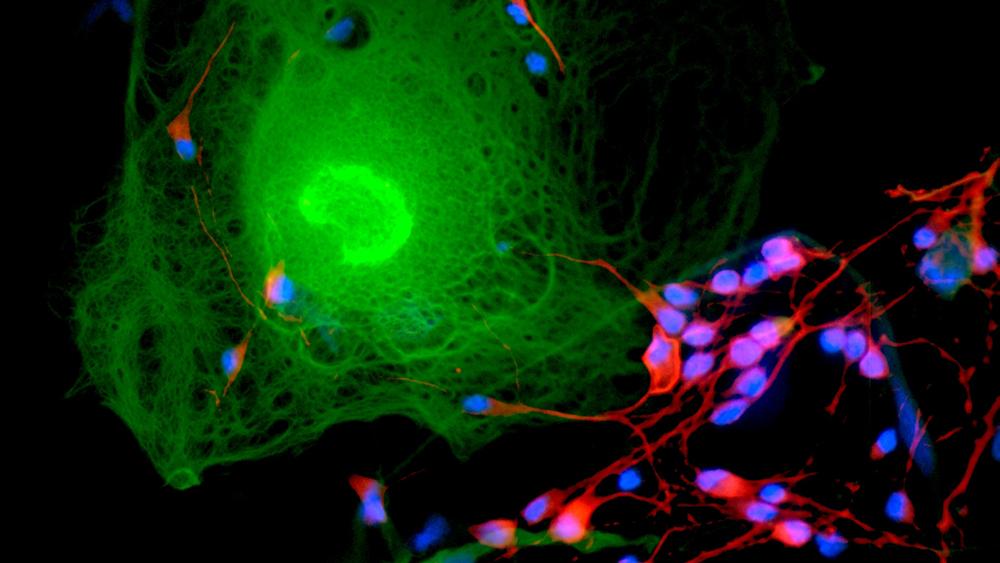 Microscopic neuroimage