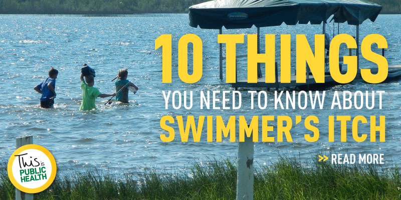 10 things you need to know about swimmer's itch