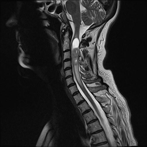 C-Spine Tumor