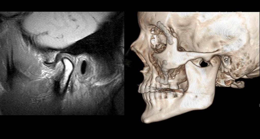 TMJ disc subluxation